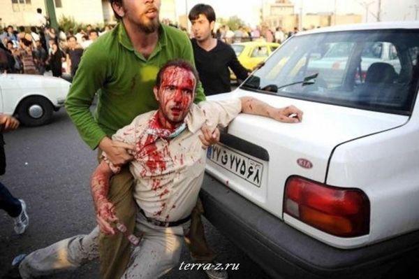 Раненый мужчин в Тегеране. Прореформистские активисты выступили против лидерства исламской республики. (21 июня 2009 года) REUTERS via Your View