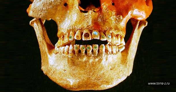 Гламурная стоматология 2500-летней давности