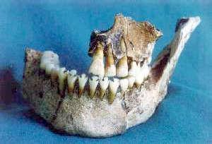 Подпилы зубов