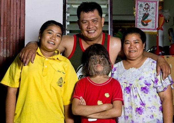 Супатра Сасупфан - самая волосатая девочка (Таиланд, Бангкок)