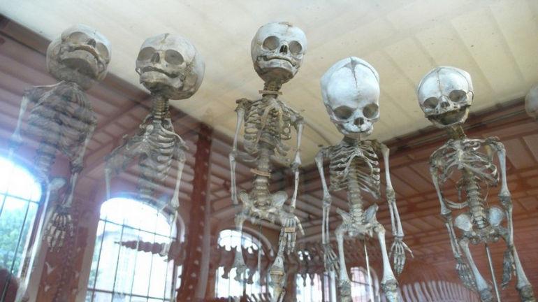 eerie-floating-foetus-skeletons-1024x575