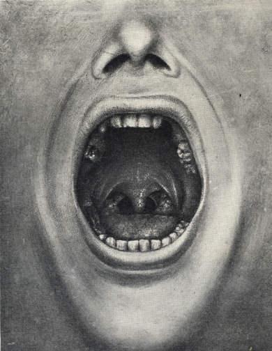 Иллюстрация из книги Генри Коттон - рот с вырванными зубами